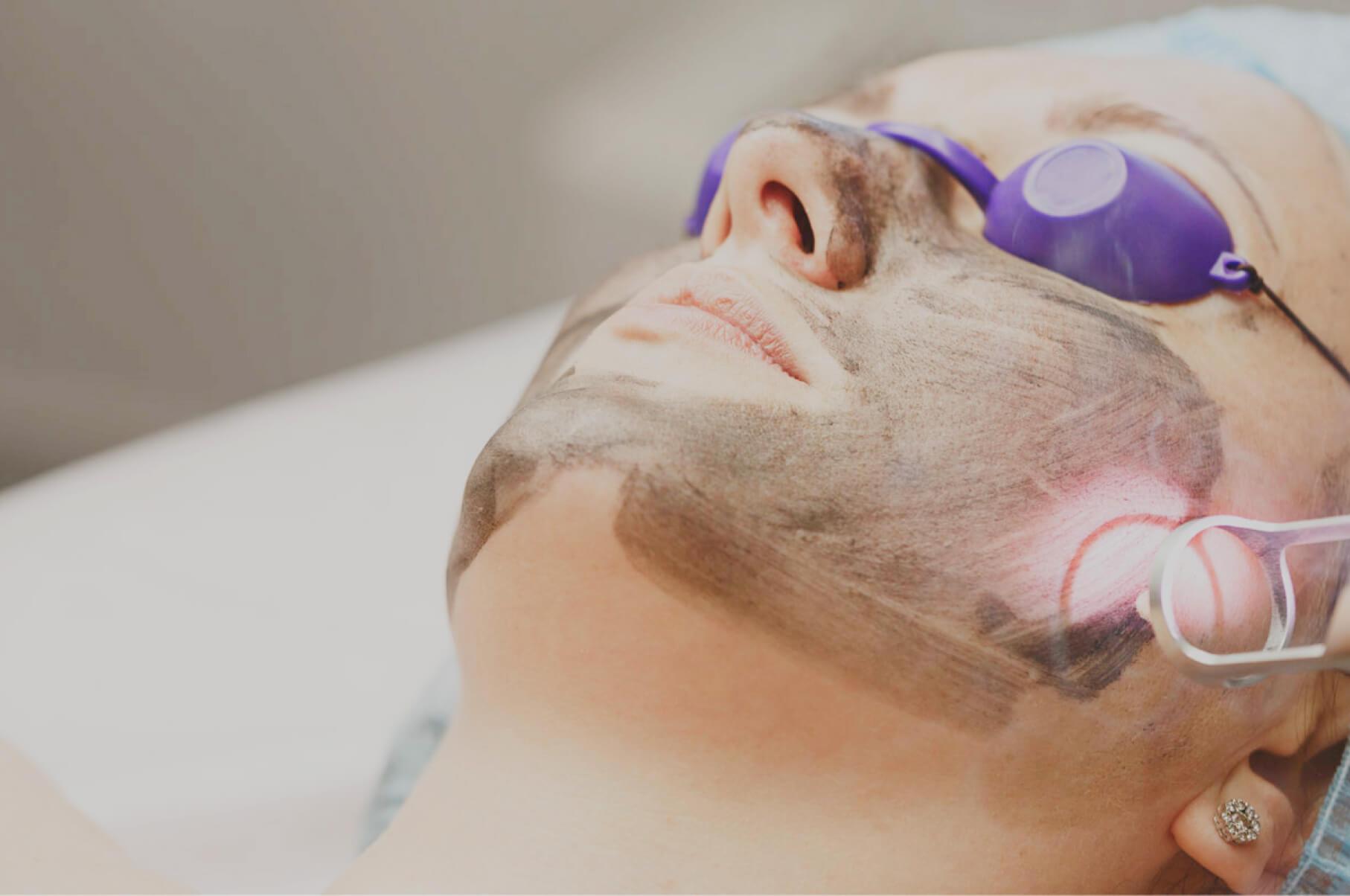 carbon laser facial treatment UK