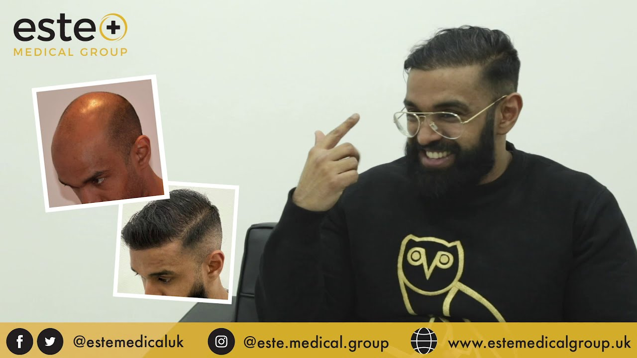 before and after FUE hair transplant