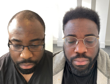 FUE before and after Glasgow