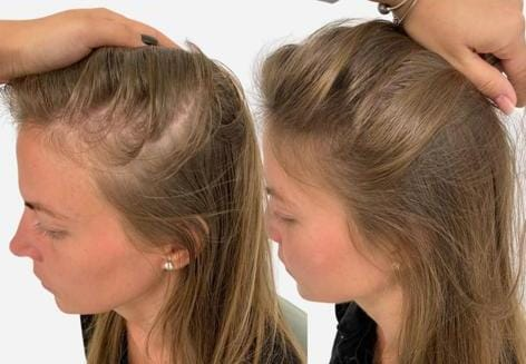 What is Female Pattern Baldness?