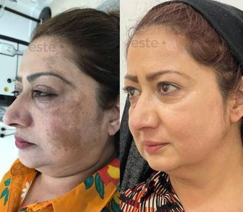 Skin Pigmentation Before and After