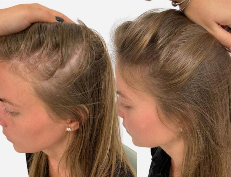 female hair thinning treatment
