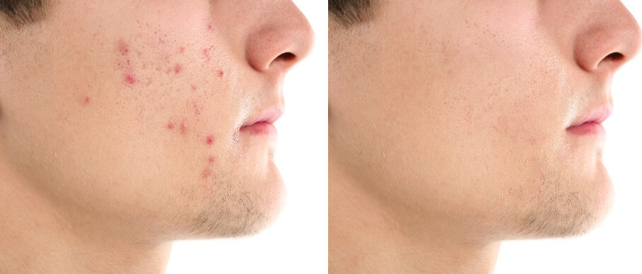 Acne scar before and after Nottingham