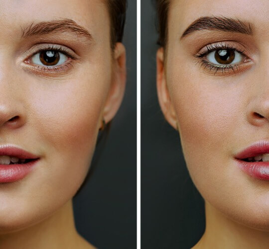 Femal eyebrown transplant before and after