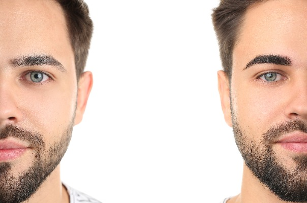 Eyebrow Transplant Surgery for men