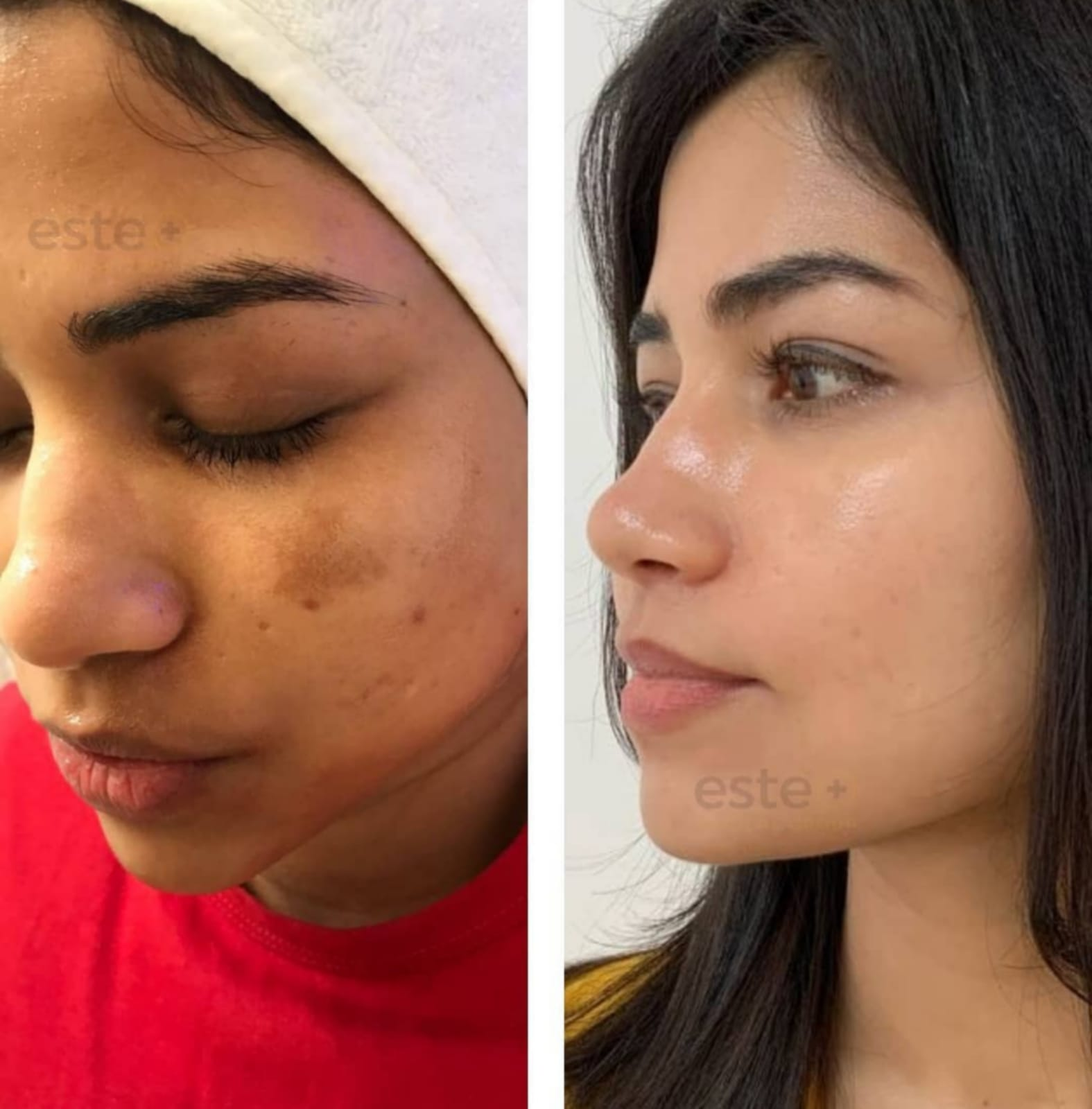 Melanostop peel before and after