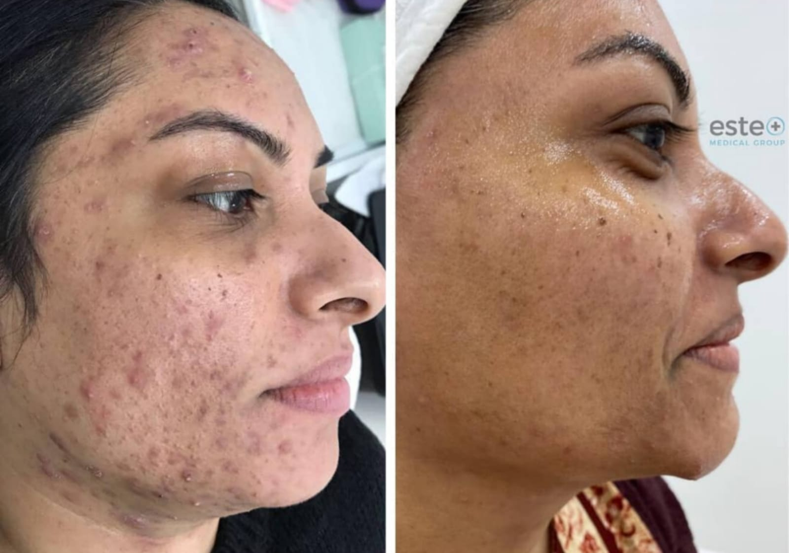 Pixel laser resurfacing before and after