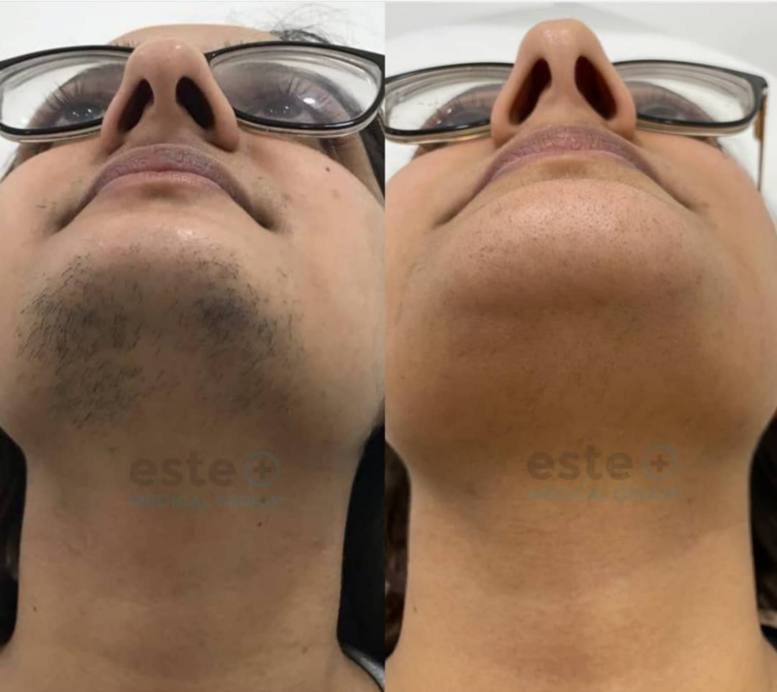 Face laser hair removal before and after