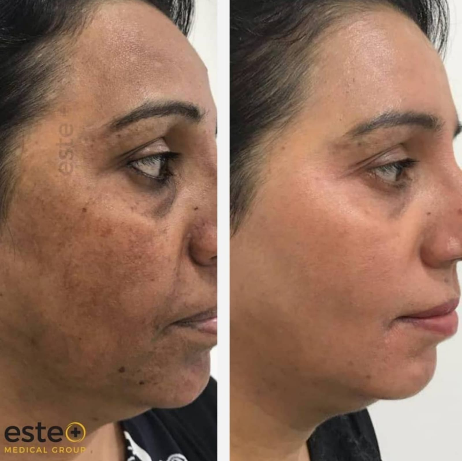 Depigmentation before and after