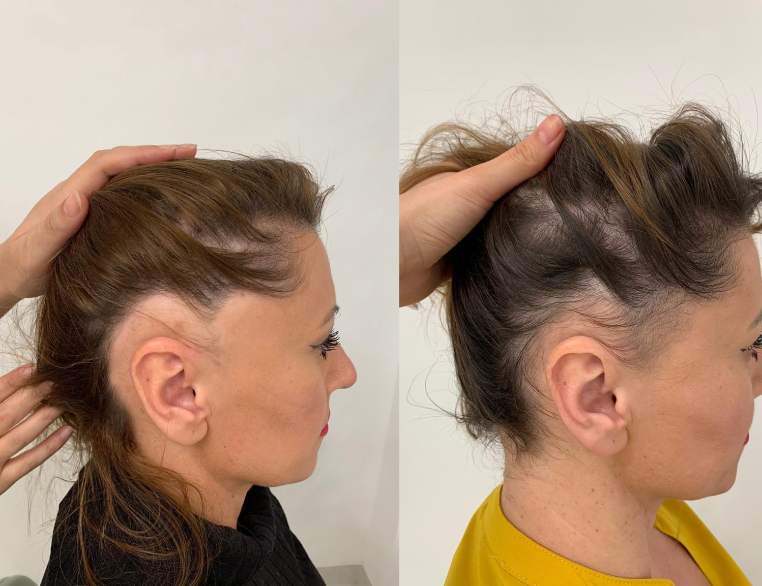 Hair loss for women results