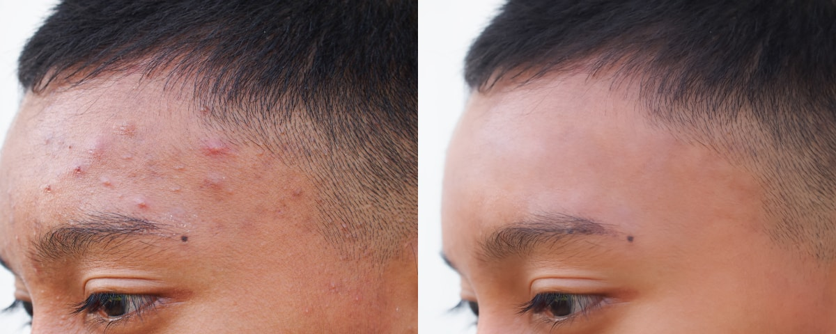 Clearskin treatment before and after