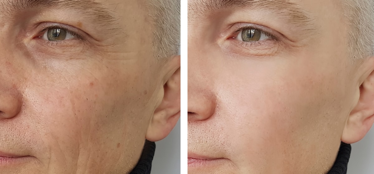 Scarlet microneedling before and after