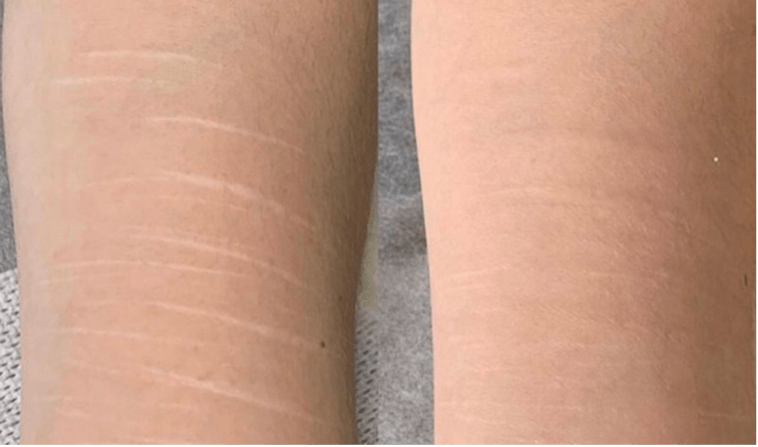 Scar camouflage results