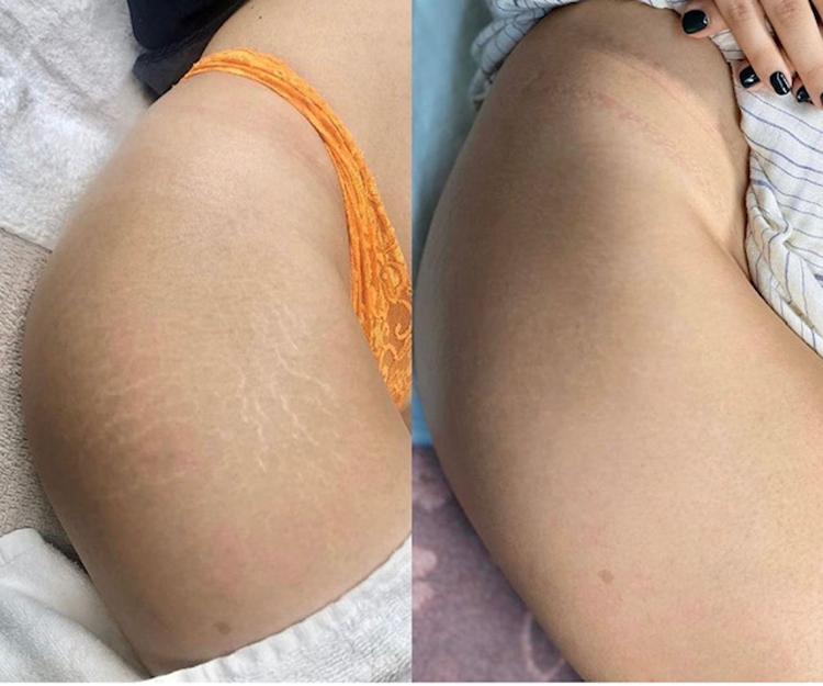 Stretch mark camouflage results