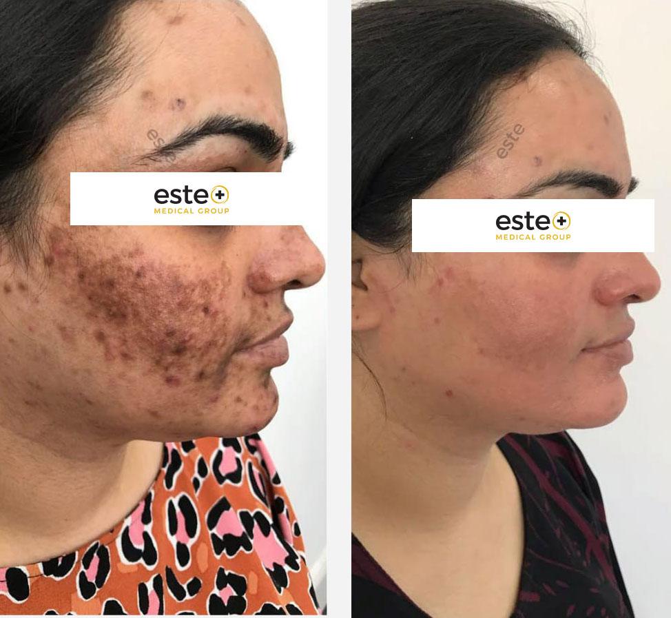 Depigmentation results