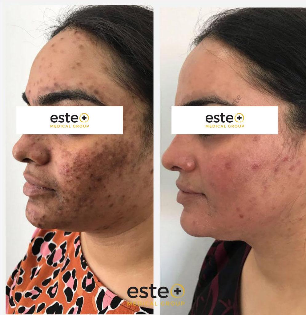 Pigmented scar treatment