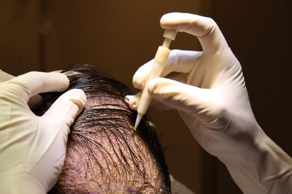 Pen Hair Implant in Turkey