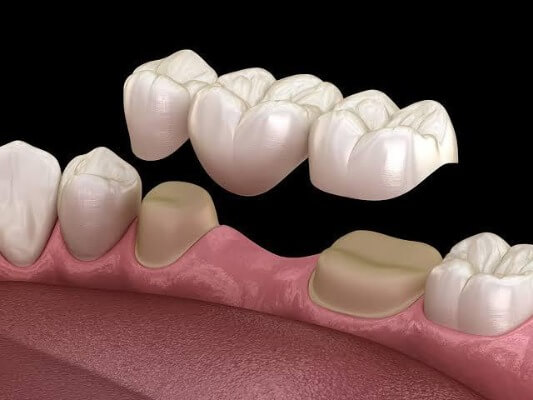 Cosmetic Dentistry Birmingham