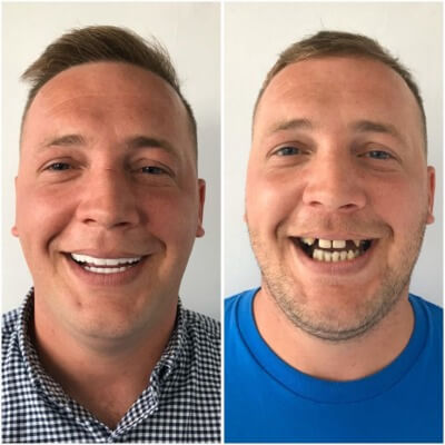 Cosmetic Dentistry Before After