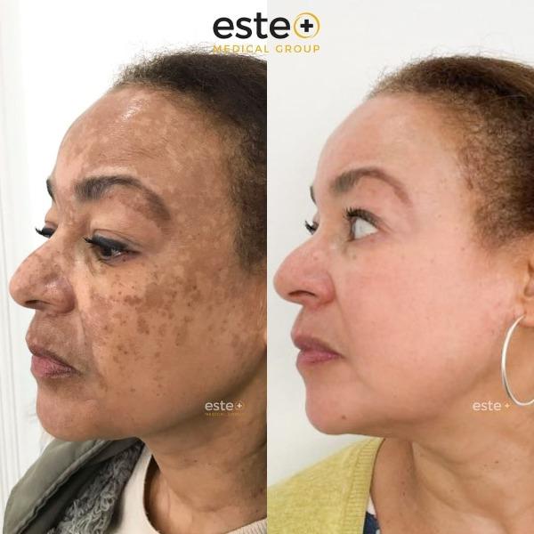 Skin Pigmentation Before After