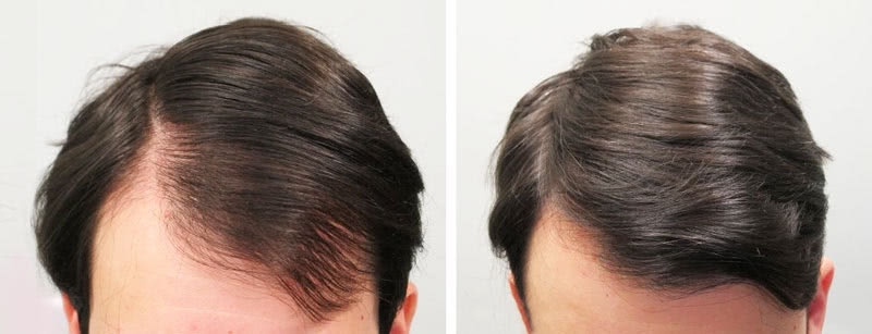 One example of successful hair loss treatment, before and after