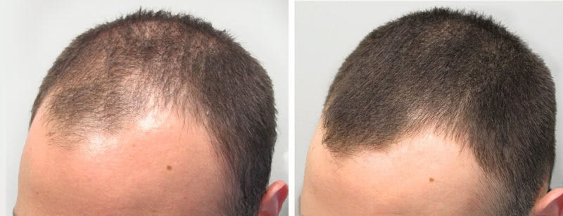 Another example of successful hair loss treatment, before and after