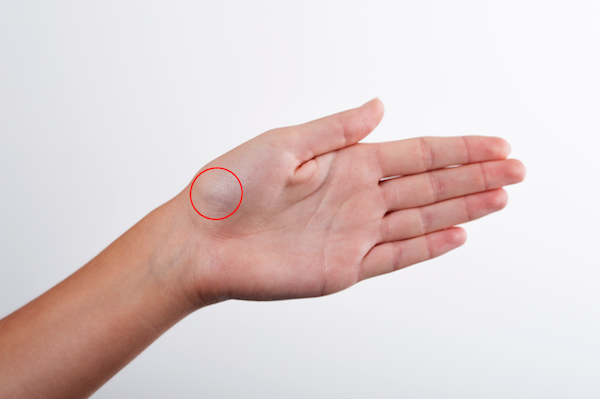 scaphoid fracture tests a térd artrózisának gélei