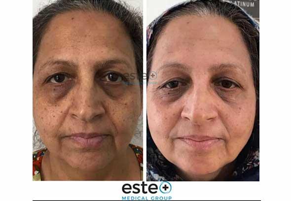 Skin Pigmentation Este Medical group Before and After