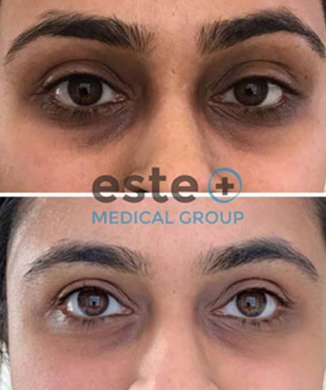 Dark Circles Treatment Before and After