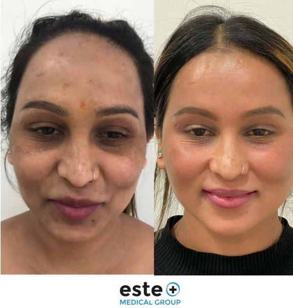 Hyperpigmentation results by Este Medical Group