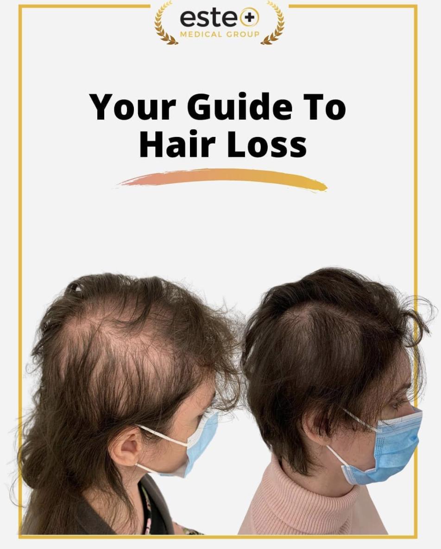 Female hair loss guide