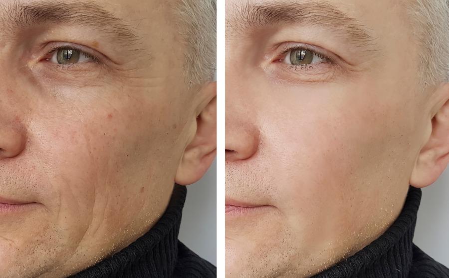 anti-wrinkle treatment Glasgow