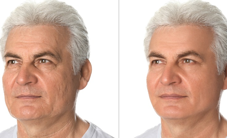 Pebble chin before and after treatment