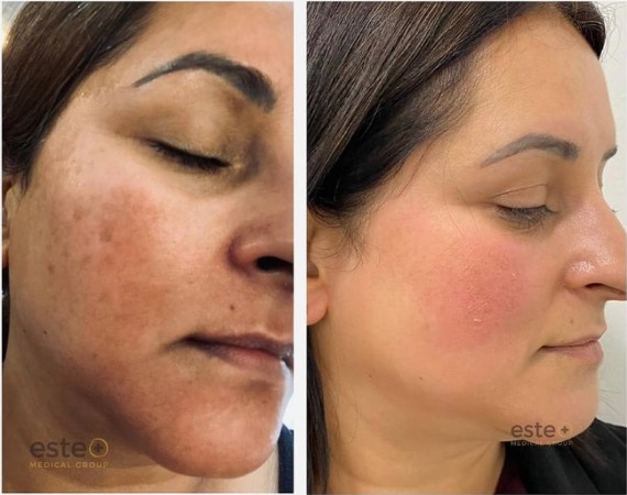 Skin discolouration before and after treatment