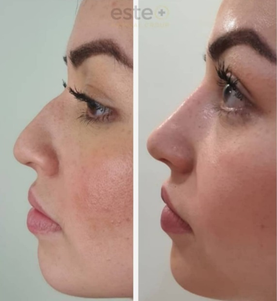 Crooked nose before and after treatment