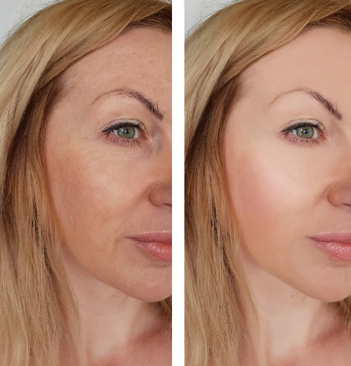 Sagging jowls before and after treatment