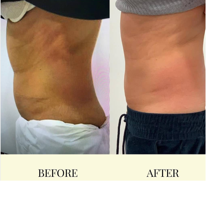Fat Freezing results by Este Medical Group