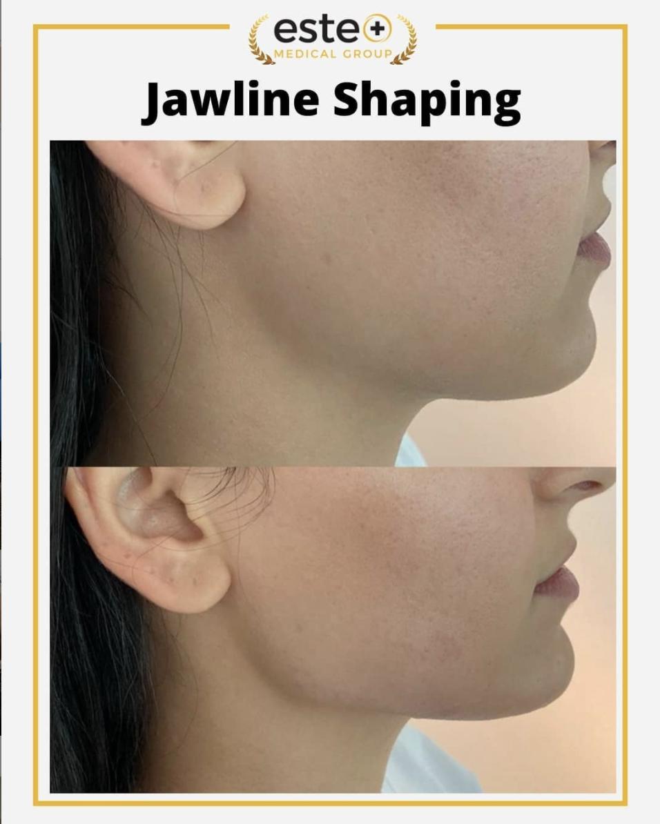 Jawline shaping Este Medical Group