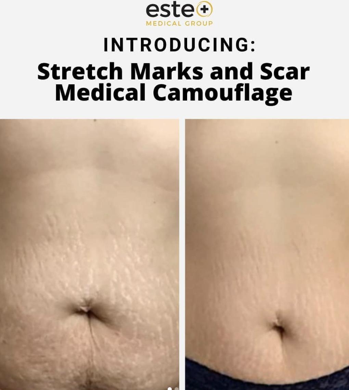 Stretch mark camouflage treatment
