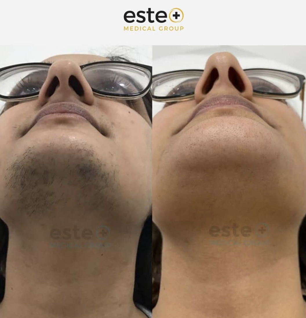 Laser Hair Removal Completely Changed Her Life