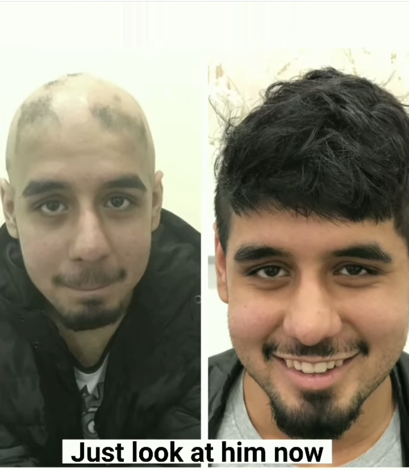 Amazing hair transformation