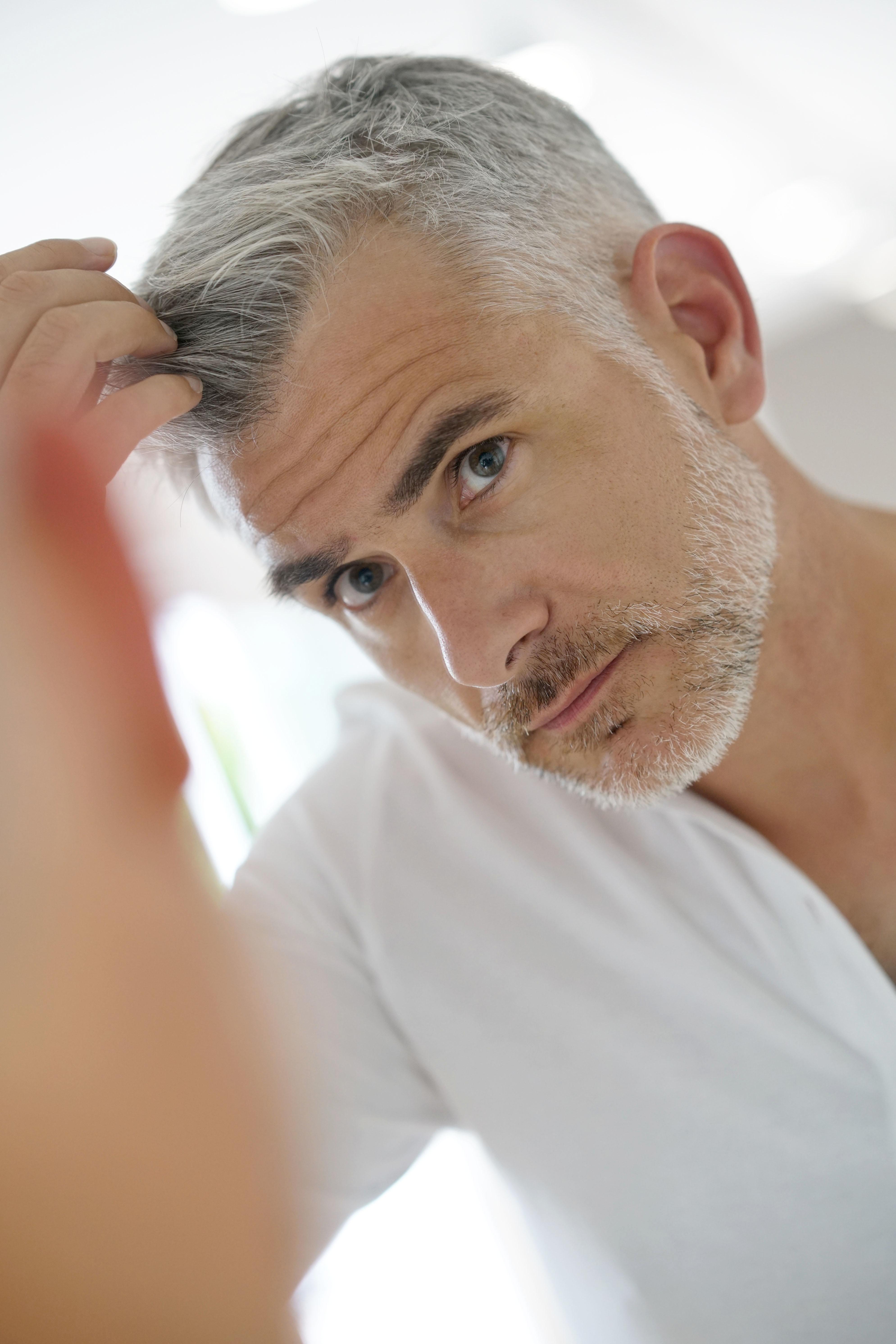 Hair transplant man