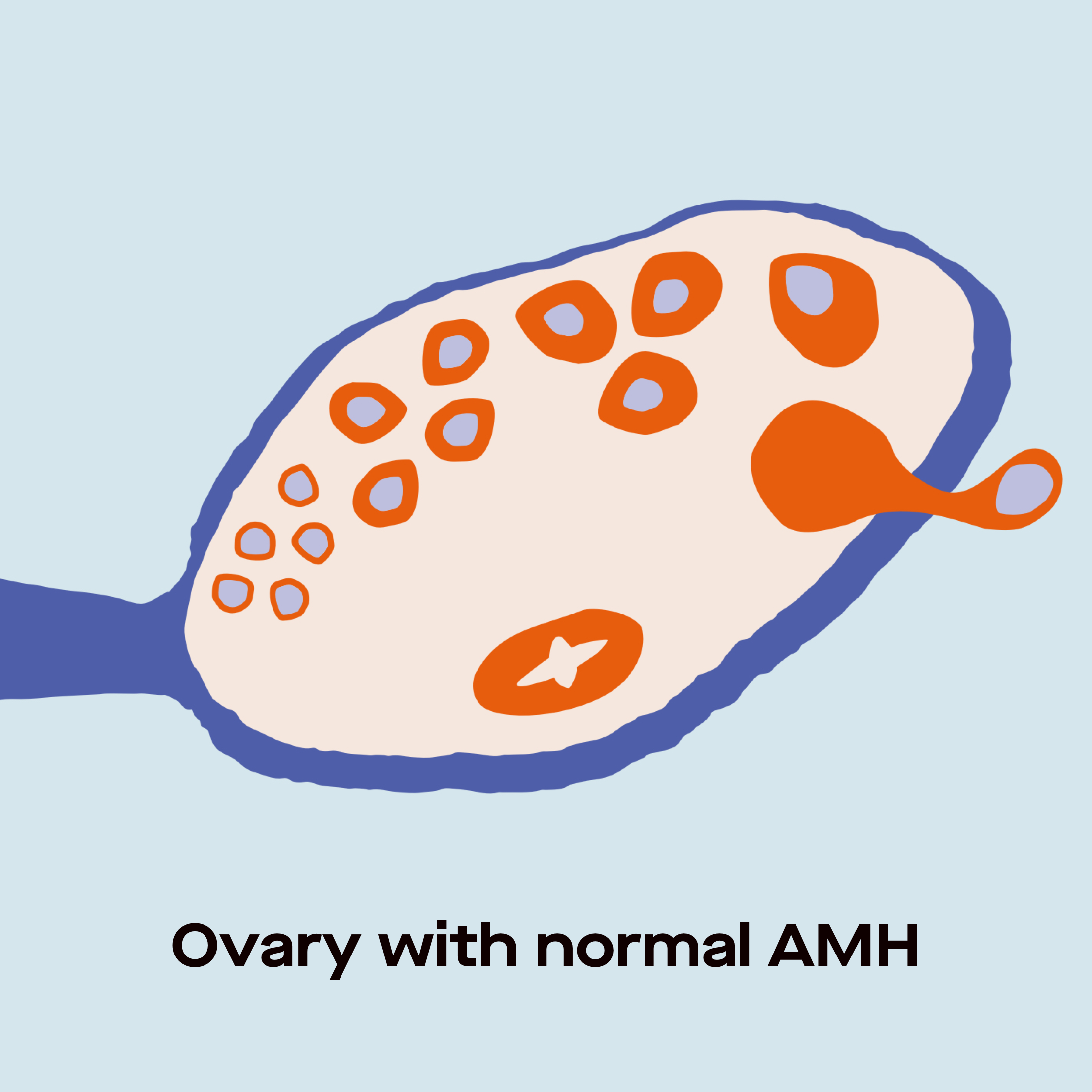 Ovary with normal AMH