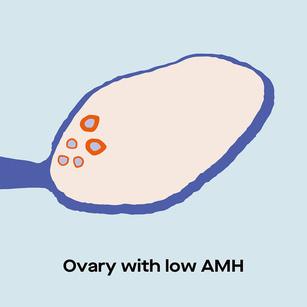 Ovary with low AMH