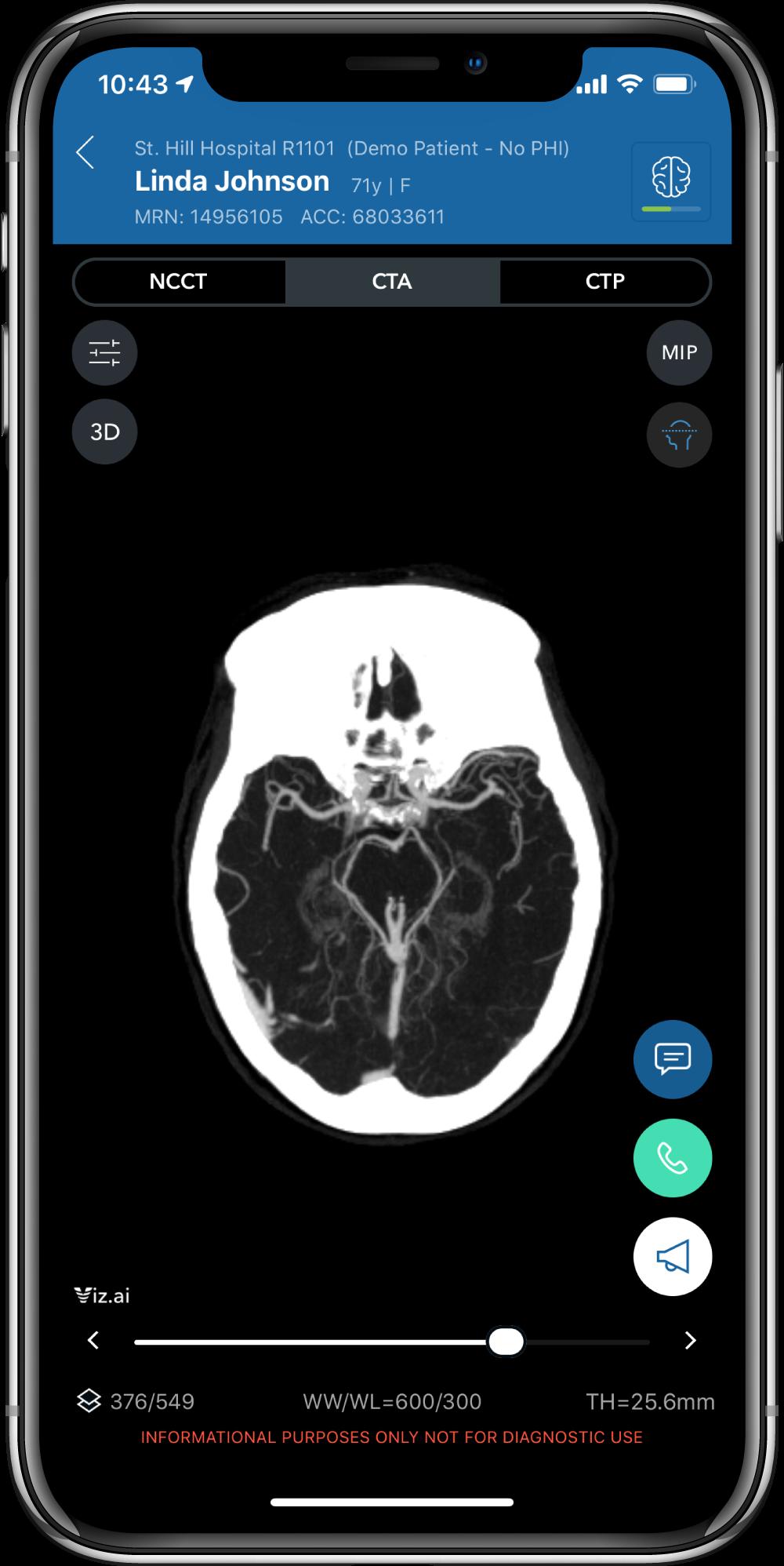 Viz LVO in a mobile device.