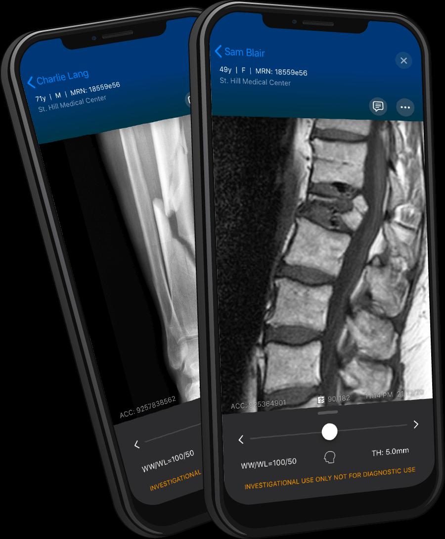 Viz.ai Intelligent Care Coordination for Spine and Orthopedics