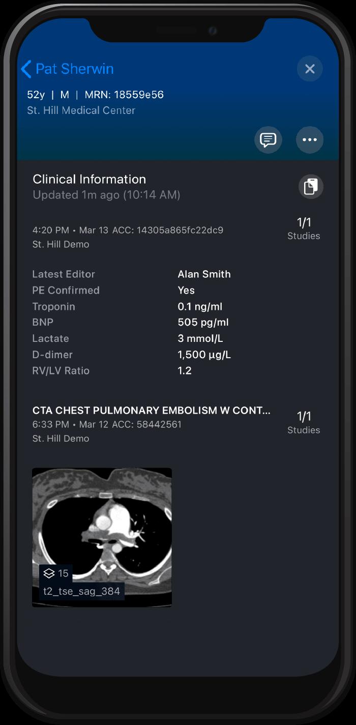 Viz.ai PE scan