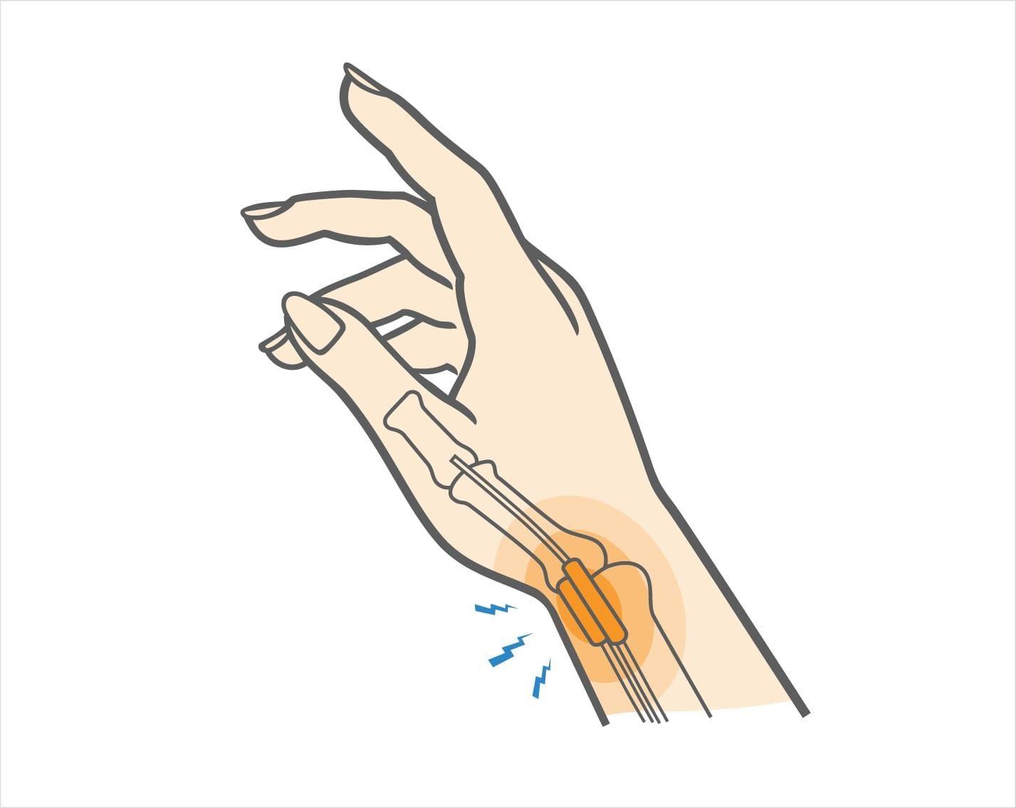 De Quervain's Tenosynovitis | Upswing Health
