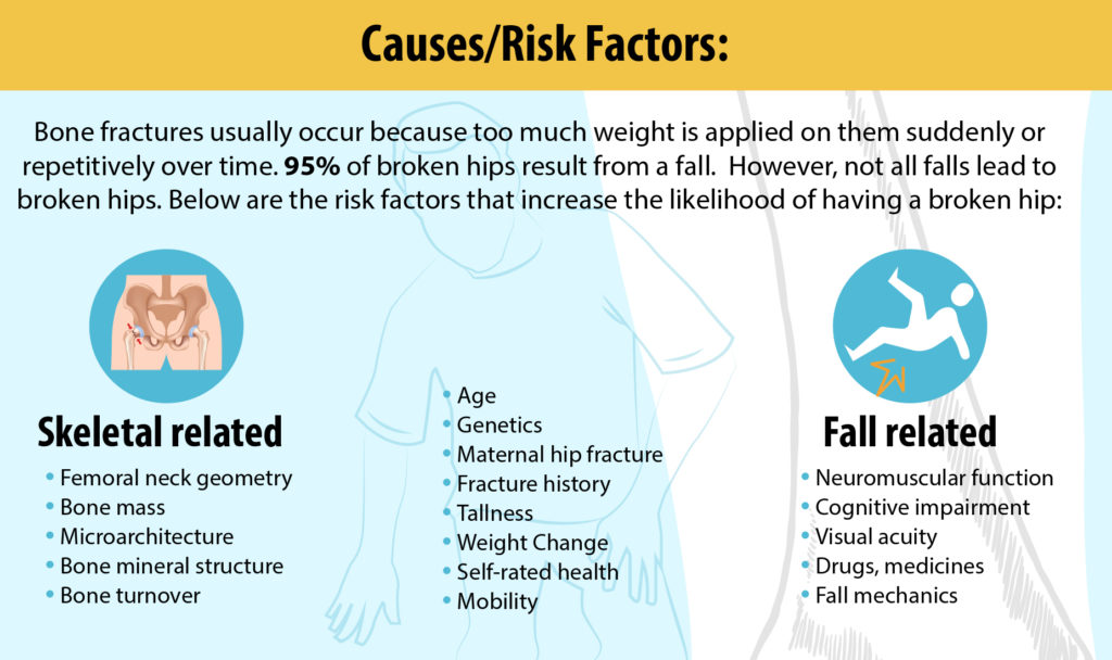 Causes and risk factors of broken hips