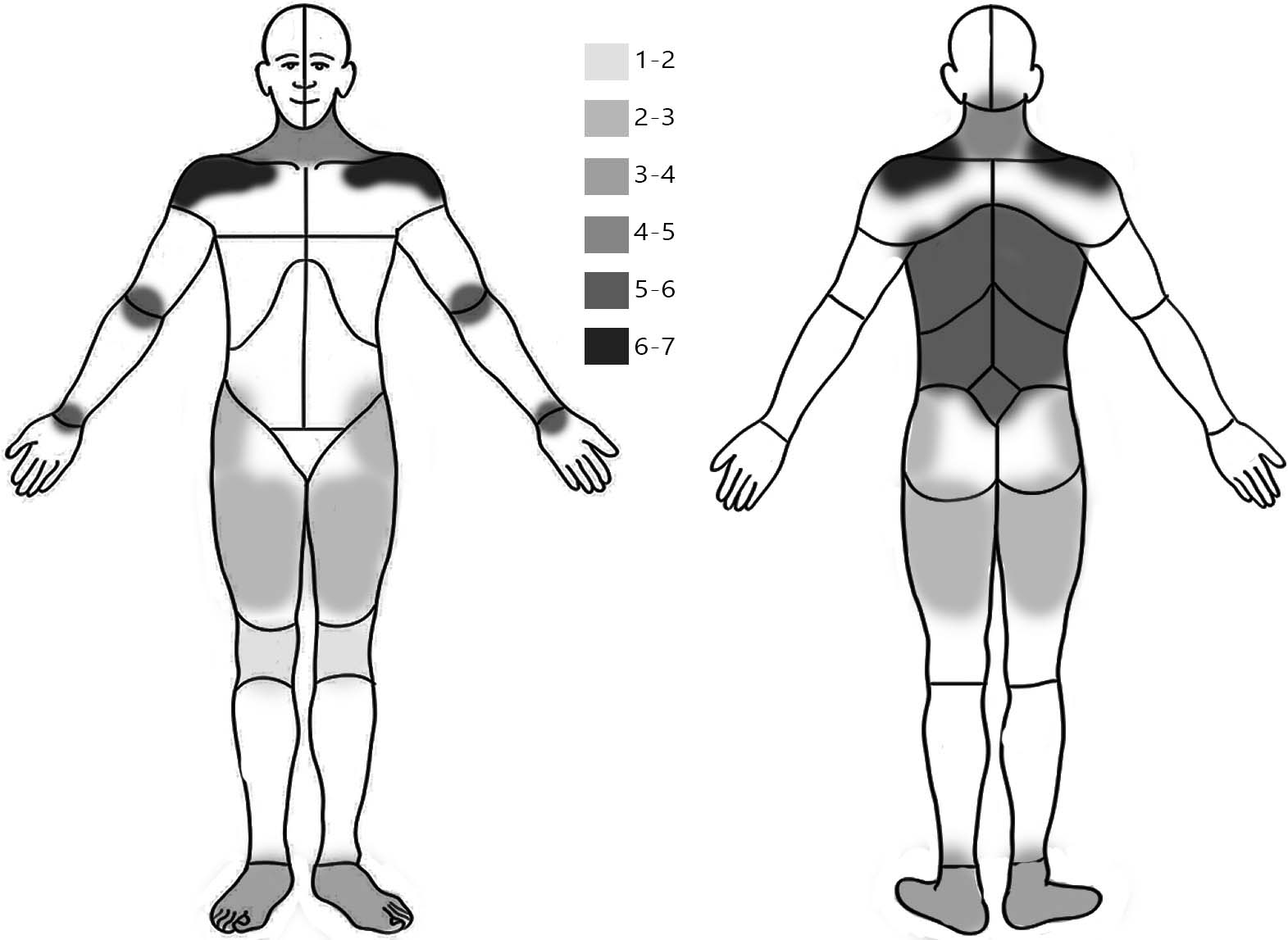 map of the body visualizing how bad pain is on a scale from 1-7